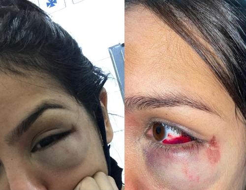 Jovem denuncia policial após sofrer agressão durante evento – Porto Seguro