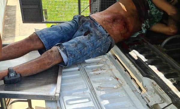 Criminoso tomba em confronto com a PM no bairro Lomanto em Itabuna