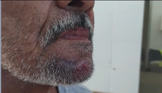 Idoso de 65 anos é agredido com tapas e socos por Atendente de farmácia em Ibicaraí – BA